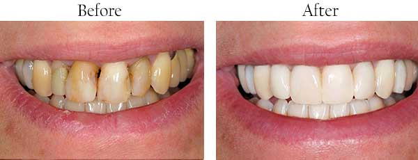 Laguna Hills Before and After Invisalign