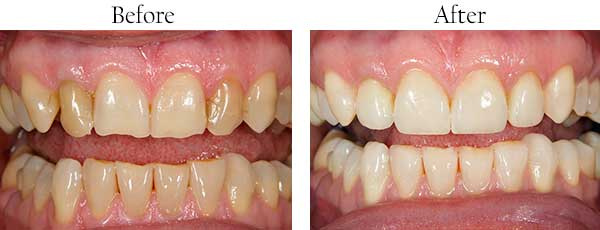 Laguna Niguel Before and After Smile Makeover