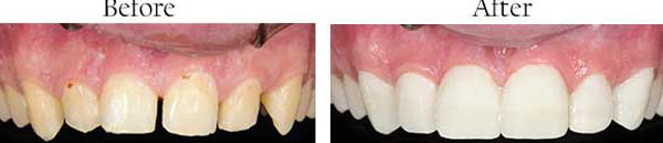 Laguna Hills Dental Images