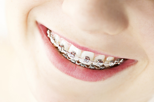 Dental Braces in Aliso Viejo