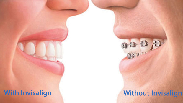 Aliso Viejo Invisible Braces